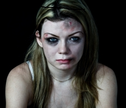Picture of a battered woman