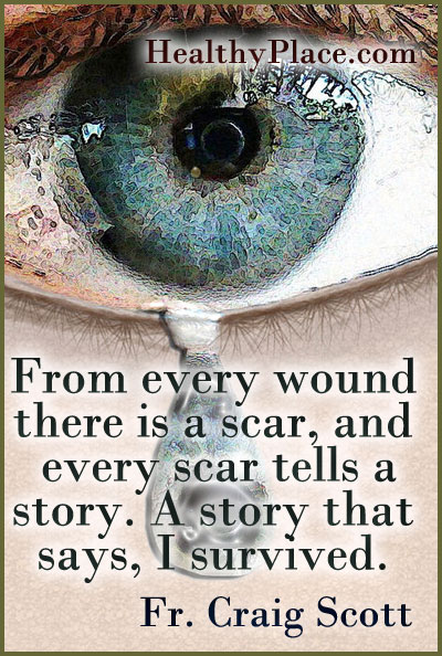 Quote on abuse - From every wound there is a scar, and every scar tells a story. A story that says, I survived.