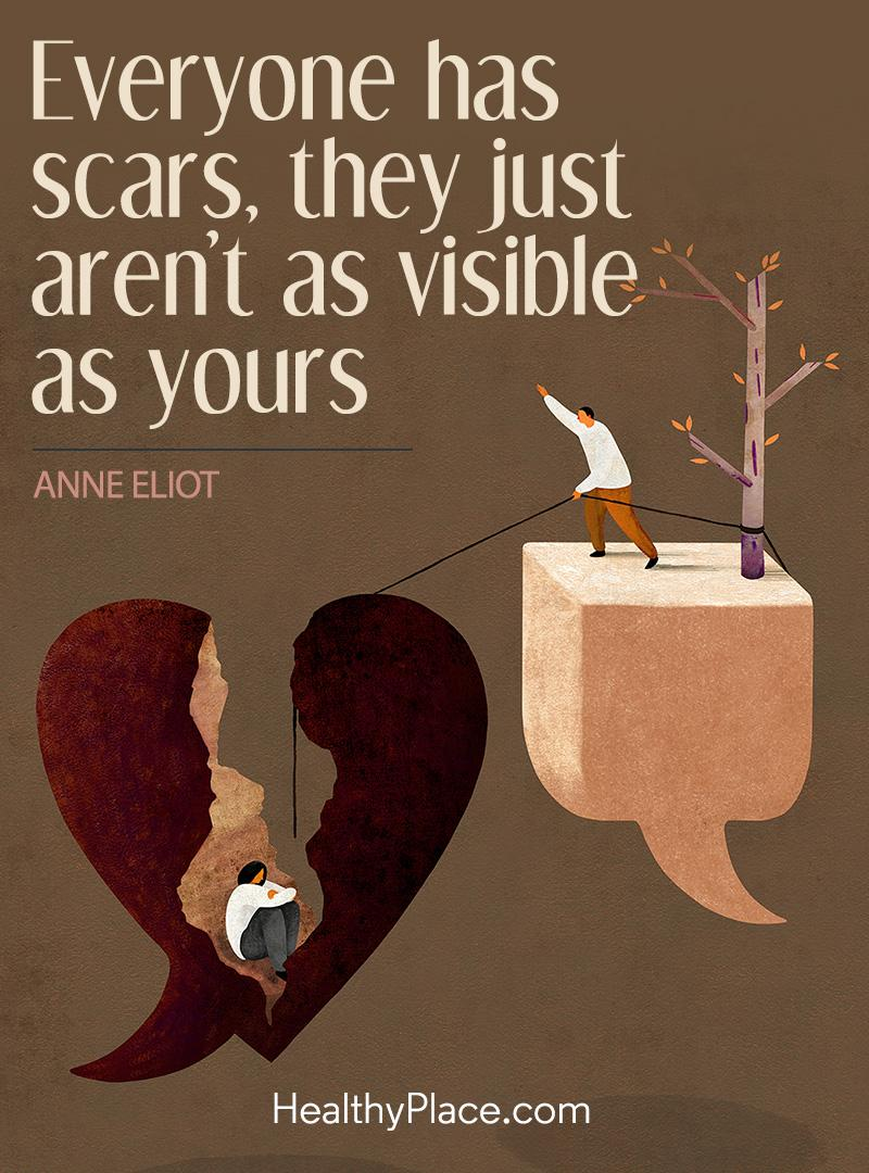 Quote on mental health - Everyone has scars, they just aren't as visible as yours.