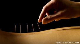 Overview of acupuncture as a natural treatment for depression and whether acupuncture works in treating depression.