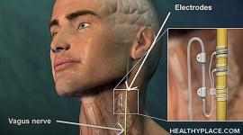 Vagus nerve stimulation is for treatment-resistant depression. Learn about VNS therapy, vagus nerve stimulation side effects and cost.