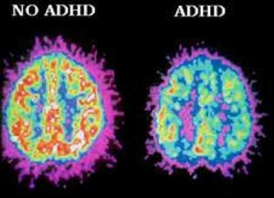 What does it mean to have adult ADHD? Does it make us who we are? Who would we be without it? Does adult ADHD affect our identities?