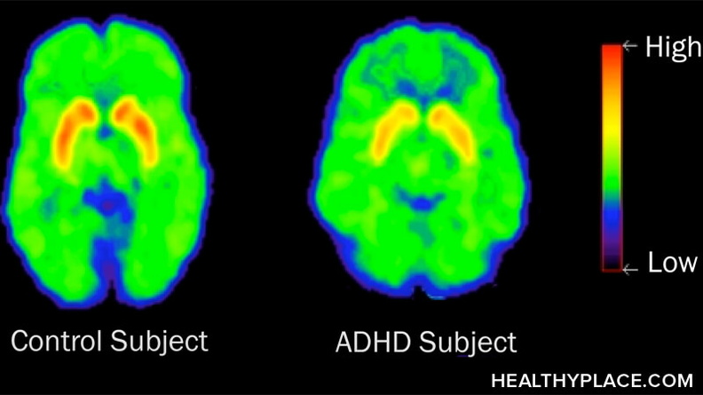 ADHD and ADD are not adjectives that should be used to describe people or behaviors. ADD and ADHD are illnesses that deserve our respect like any other.